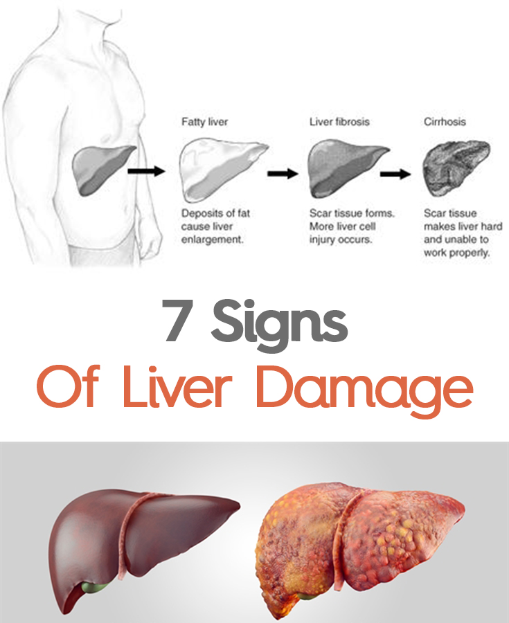 can lunesta damage your liver